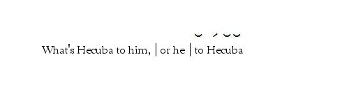 tirple-ending-he-to-hecuba